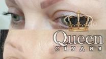 Удаление татуажа в студии Queen