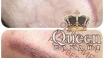 Удаление татуажа бровей лазером