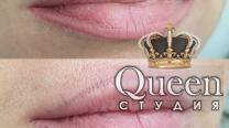 Удаление старого татуажа губ